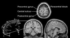 Imagen de la relación del lóbulo paracentral con el homúnculo sensorial de Penfield y Rasmussen (1950)